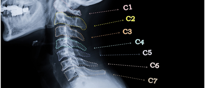 Cervical Spine Personal Injury Lawyer Winchester. IL