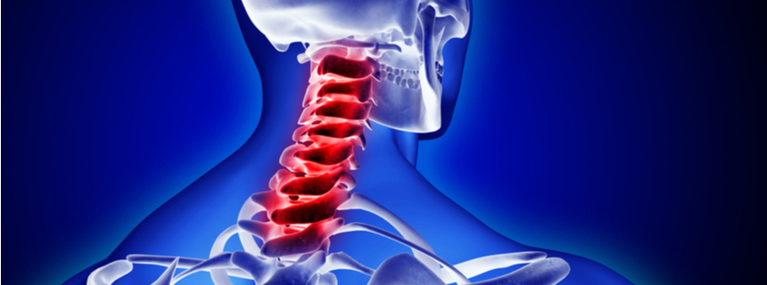 Neck Injuries - Personal Injury Lawyer Crystal City